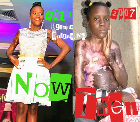 Aisha Nabukeera - Then VS. Now