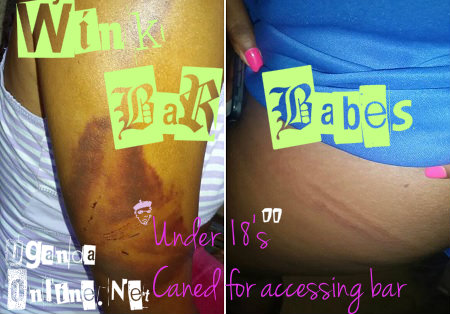 The girls who were beaten at Wink Bar