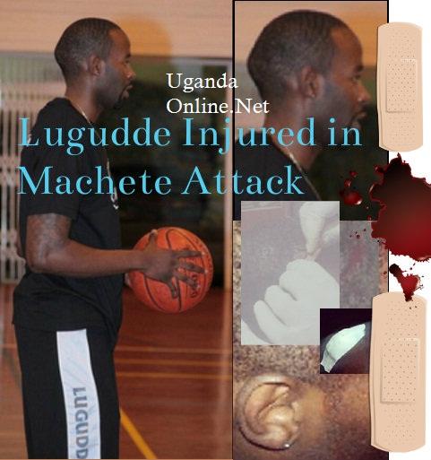 LK4 nursing machete injuries
