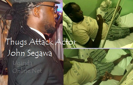 Segawa at the hospital and how he looked with his dreads